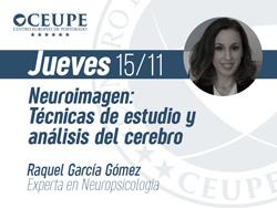 Neuroimagen: Técnicas de estudio y análisis del cerebro
